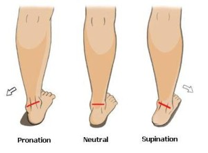 pain in arch of foot and/or legs.